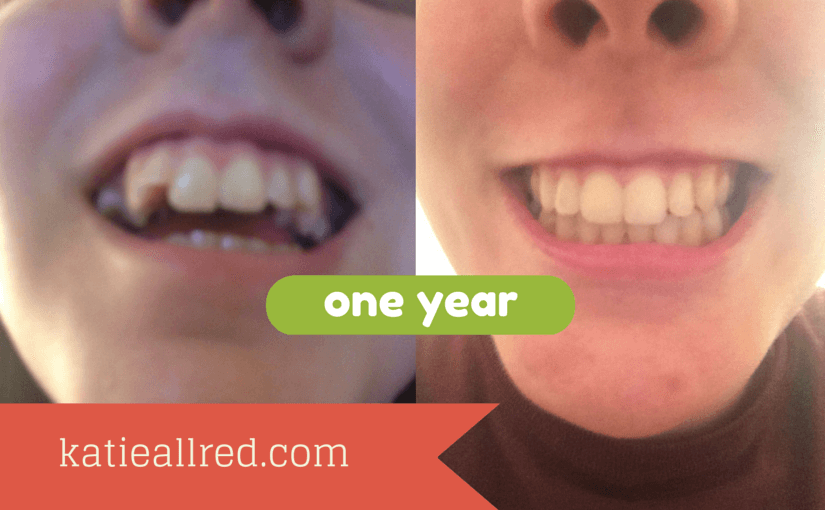 How I Survived Braces and Upper Jaw Surgery
